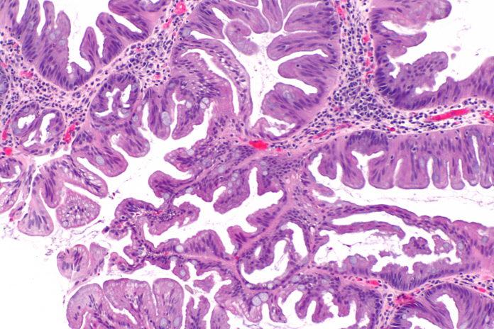 Wirusowe zapalenie typu B